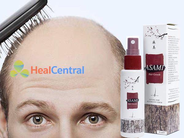 Xịt Mọc Tóc Asami - kích thích mọc tóc hiệu quả