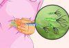 Viêm loét dạ dày tá tràng do nhiễm Hp