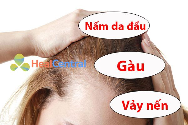 Phân biệt nấm da đầu với các bệnh da liễu khác