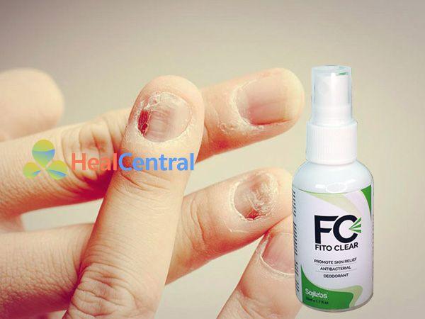 Fito Clear - hỗ trợ trị nấm móng