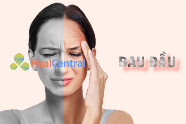 Ginkgo Biloba giảm các cơn đau đầu
