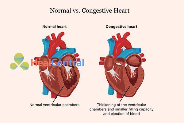 Tim của người bình thường và tim của bệnh nhân suy tim