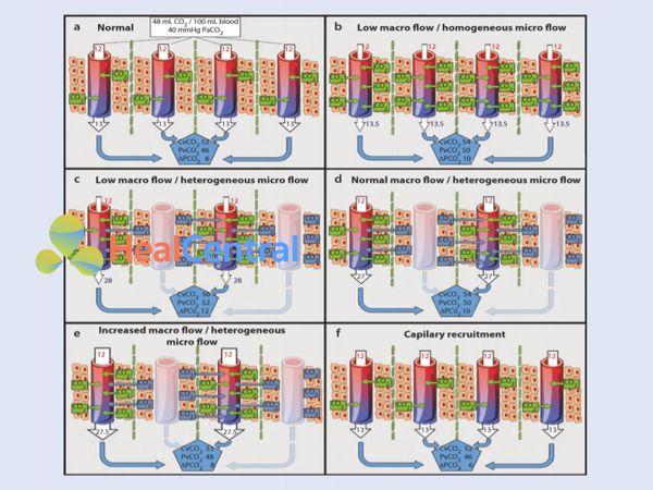 Các biến thể lưu lượng máu vĩ mô và vi tuần hoàn và ảnh hưởng của nó đến Pv-aCO2