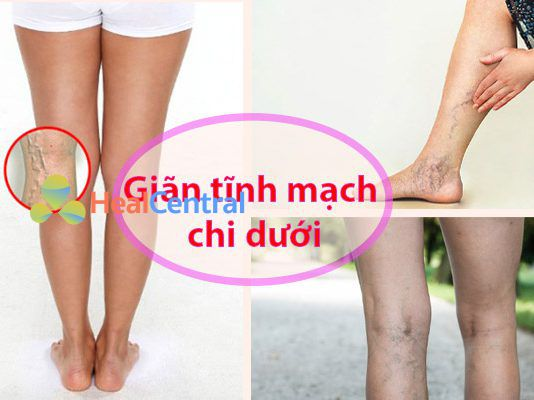 Suy giãn tĩnh mạch chân là bệnh gì?