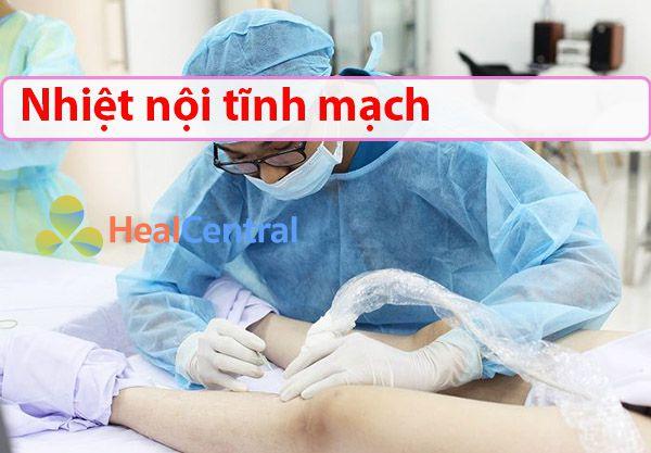 Điều trị suy giãn bằng nhiệt nội tĩnh mạch
