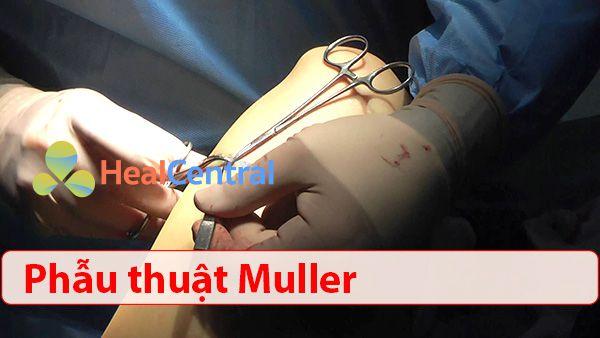 Phẫu thuật Muller điều trị suy giãn tĩnh mạch chi dưới