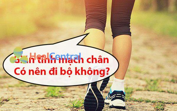 Giãn tĩnh mạch chân có nên đi bộ không?