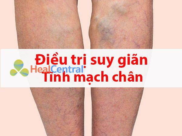 Điều trị giãn tĩnh mạch chân