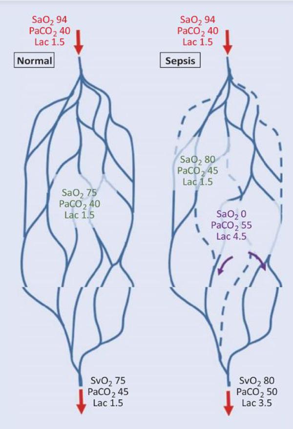 Hình 14.2 Mối quan hệ giữa độ chênh PCO2 tĩnh mạch-động mạch và thay đổi vi tuần hoàn