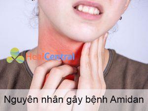 Nguyên nhân gây bệnh Viêm Amidan