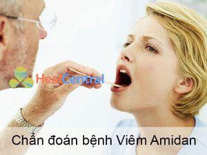 Biện pháp chẩn đoán bệnh Viêm Amidan