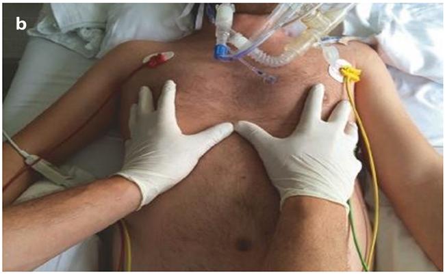 Đánh giá sự đối xứng của mở rộng thành ngực bằng cách sờ nắn b