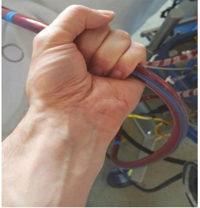 Sờ để cảm nhận các rung động của ống tĩnh mạch cho thấy sự thoát nước của máu tĩnh mạch bị suy yếu