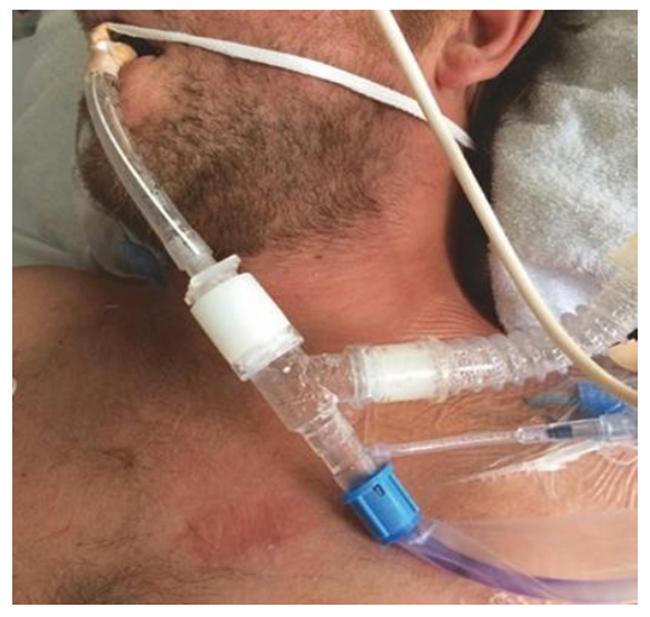 Plethora trên khuôn mặt với ban đỏ lan tỏa của ngực trên ở một bệnh nhân bị tăng thán khí cấp tính