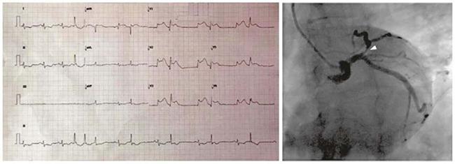 ECG với DII kéo dài cho thấy một vài ngoại tâm thu (NTT) trên thất, sau đó là ngoại tâm thu thất nhịp đôi