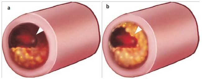 Mặt cắt ngang động mạch vành trong ACS