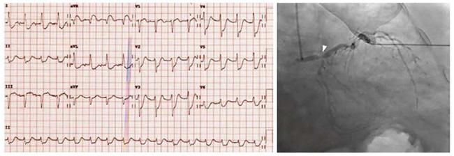 ECG với ST chênh xuống đáng kể ở các chuyển đạo bên và trước tim và ST chênh lên ở aVR