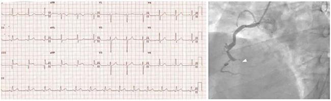 ECG với ST chênh lên ở thành dưới (DII, DIII, aVF) tương ứng với tắc hoàn toàn đoạn xa của động mạch vành phải