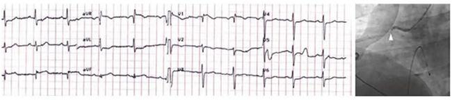 ECG cho thấy ST chênh lên thành dưới (DII, DIII) do tắc động mạch vành phải đoạn gần