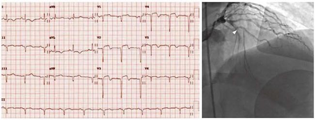 ECG với STEM thành trước. ST chênh lên được tìm thấy ở V2, V3 và mở rộng đến V4