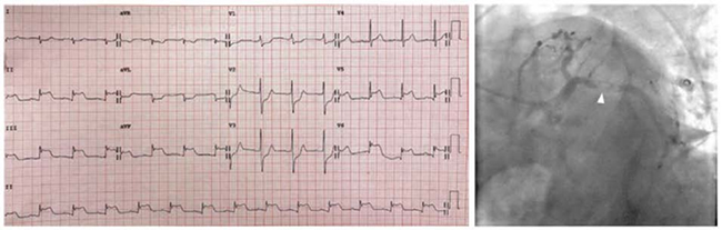 ECG với ST chênh lên ở thành dưới cũng như ST chênh lên ở V5-V6