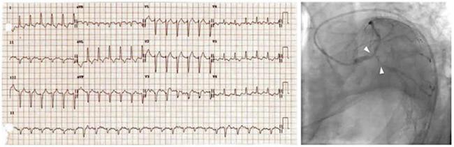 ECG với cuồng nhĩ và LBBB mới khởi phát được gây ra bởi một tổn thương chổ chia đôi