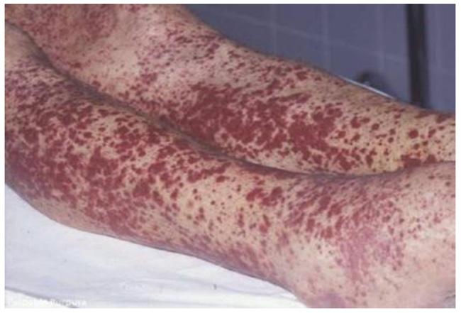 Ban xuất huyết sờ thấy như một dấu hiệu đặc trưng của viêm mạch