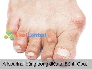 Allopurinol dùng trong điều trị Bệnh Gout