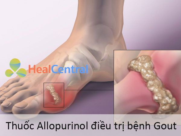 Thuốc Allopurinol điều trị bệnh Gout