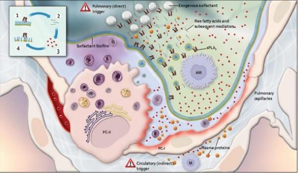 Sinh học của ARDS sơ sinh và tương tác với việc sử dụng chất hoạt động bề mặt ngoại sinh