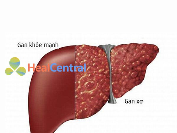 Hình ảnh lá gan giảm dần chức năng và dẫn đến bệnh xơ gan