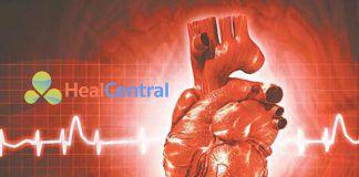 Huyết áp mục tiêu trong hồi sức ban đầu
