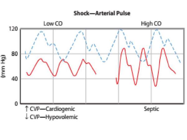 Giản đồ miêu tả sóng động mạch bình thường
