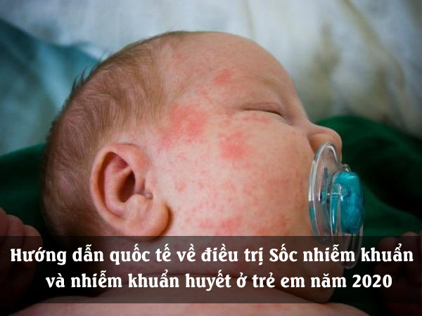 Hướng dẫn quốc tế về điều trị Sốc nhiễm khuẩn và Rối loạn chức năng cơ quan liên quan đến nhiễm khuẩn huyết ở trẻ em năm 2020