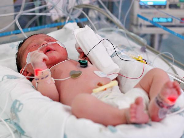 Điều trị cho trẻ gặp tình trạng nhiễm khuẩn huyết