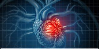 Khuyến cáo ESC 2019 về quản lý bệnh nhân nhịp tim nhanh trên thất