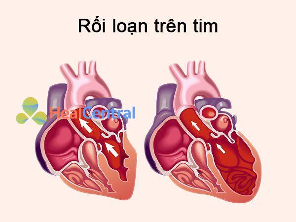 Những rối loạn xảy ra trên tim