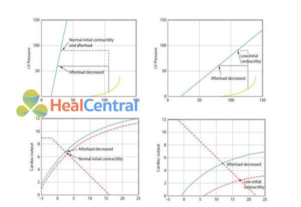 chức năng tim tương ứng với mối liên quan áp lực – thể tích