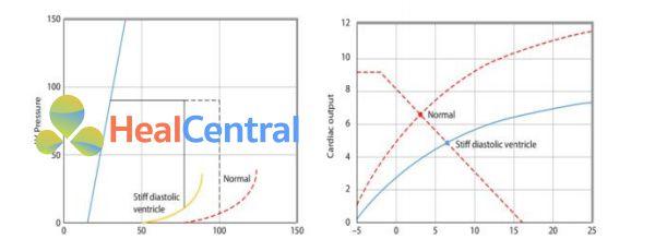 chức năng tim tương ứng với mối liên quan áp lực – thể tích hình 6