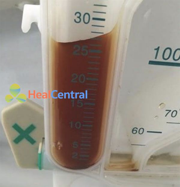 Đặc trưng nước tiểu cô đặc ở bệnh nhân thiểu niệu