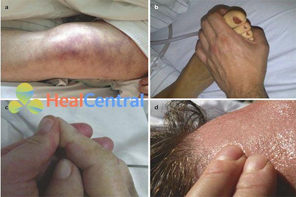 Phương pháp lâm sàng để đánh giá tưới máu da