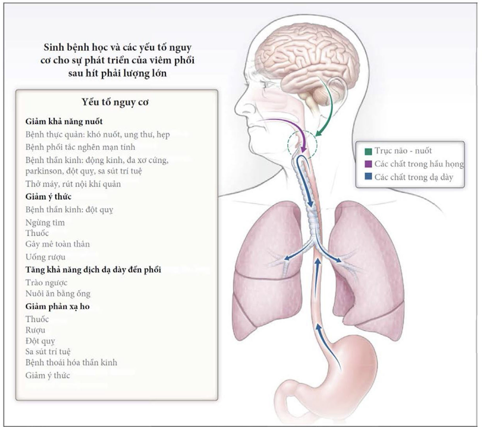 viêm phổi hít
