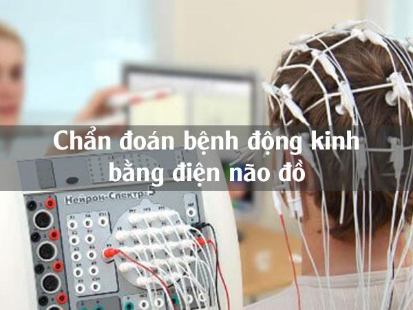 Điện não đồ chẩn đoán bệnh động kinh