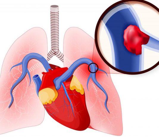 thuyên tắc phổi cấp