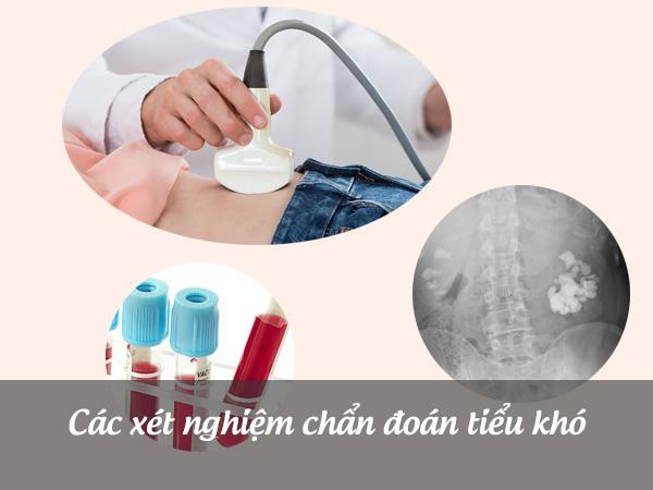 Xét nghiệm chẩn đoán tiểu khó