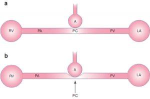 Hình 10.5 Sơ đồ mạch máu phổi. (a) Các mao mạch phổi của phế nang. (b) Với lực căng phế nang do thông khí áp lực dương, mao mạch phổi có thể bị nén, làm tăng sức cản mạch máu phổi và hậu tải thất phải. A: phế nang; LA: tâm nhĩ trái; PA: động mạch phổi; PC: mao mạch phổi; PV: tĩnh mạch phổi; RV: tâm thất phải