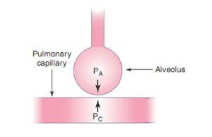 Hình 10.6 Mối quan hệ giữa áp lực mao mạch phổi và áp lực phế nang trong sự phát triển của phù phổi (thủy tĩnh). Khi áp lực phế nang tăng lên do thông khí áp lực dương, độ chênh lệch áp lực giữa mao mạch phổi và phế nang bị giảm, làm giảm sự thoát dịch vào phế nang.