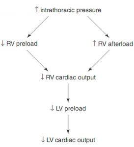 Hình 10.7 Áp lực trong lồng ngực tăng lên ảnh hưởng đến các điều kiện tải tâm thất phải, dẫn đến giảm cung lượng tim. RV: tâm thất phải; LV: tâm thất trái