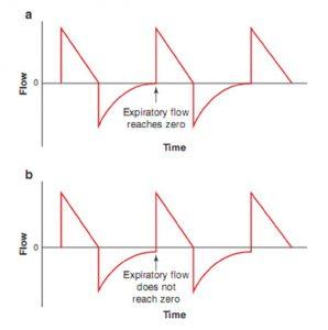 Hình 6.2 Mô hình dạng sóng lưu lượng. (a) Lưu lượng thở ra bình thường. Lưu ý rằng lưu lượng thở ra trở về zero trước khi bắt đầu nhịp thở tiếp theo. (b) Mô hình lưu lượng thở ra cho thấy nhịp thở xếp chồng. Lưu ý rằng lưu lượng thở ra không đạt đến zero trước khi bắt đầu nhịp thở tiếp theo. Sự hiện diện của lưu lượng thở ra vào cuối thời gian thở ra ngụ ý rằng áp lực phế nang cao hơn áp lực đường thở gần tại thời điểm đó.