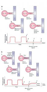 Hình 6.3 Thao tác tạm dừng thở ra thể hiện auto- PEEP. (a) Ví dụ về thao tác tạm dừng thở ra trong bối cảnh sức cản đường thở bình thường. Khi thở ra, van thở đóng lại, không cho phép bất kỳ không khí nào rời khỏi hệ hô hấp. Bởi vì áp lực phế nang bằng áp lực đường thở gần cuối thì thở ra, không có lưu lượng bổ sung từ phế nang đến máy thở; do đó, áp lực đường thở gần vẫn không thay đổi khi kết thúc quá trình tạm dừng thở ra và không có PEEP nội tại. Do đó, tổng PEEP bằng với PEEP bên ngoài. (b) Ví dụ về thao tác tạm dừng thở ra trong bối cảnh sức cản đường thở tăng đáng kể. Khi thở ra, van thở đóng lại, không cho phép bất kỳ không khí nào rời khỏi hệ hô hấp. Bởi vì áp lực phế nang vẫn cao hơn áp lực đường thở ở cuối thì thở ra, có thêm lưu lượng khí từ phế nang đến máy thở, tiếp tục làm tăng áp lực đường thở gần. Sự gia tăng thêm áp lực đường thở ở cuối khi thở ra được gọi là PEEP nội tại hoặc PEEP tự động. Trong trường hợp này, PEEP tổng là 12 cm H2O, PEEP ngoài (PEEP cài đặt) là 5 cm H2O, vì vậy PEEP tự động là 7 cm H2O.
